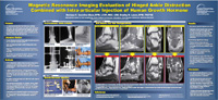 Magnetic Resonance Imaging Evaluation of Hinged Ankle Distraction Combined with Intra-articular Injection of Human Growth Hormone